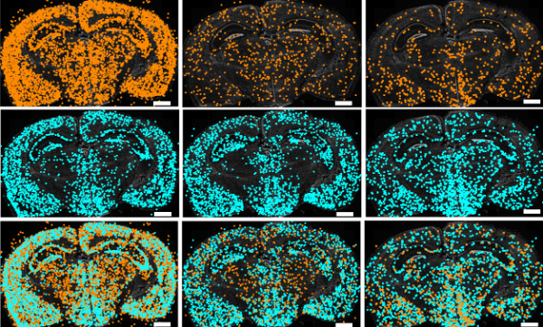 A map of RNA editing in the developing brain